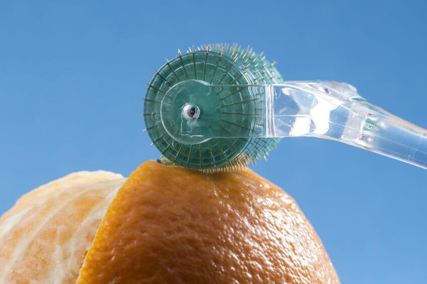 Microneedling an orange